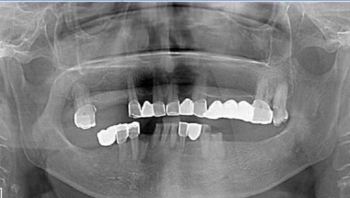 Блог им. Heavy: Понты дороже зубов