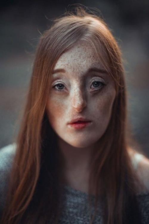 Эктодермальная дисплазия